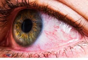 Des petits parasites sont à l'origine des irritations et des rougeurs