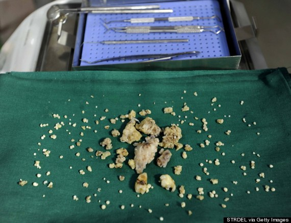 Un jeune indien avec 260 dents, les médecins lui retirent 232!