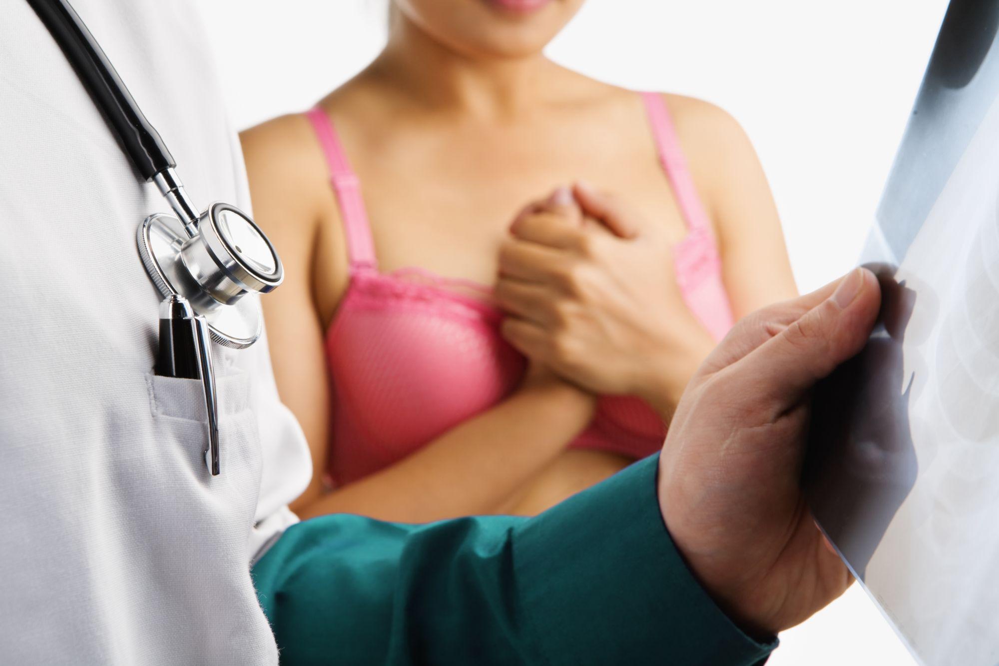 La protéine ELF5 aurait un effet négatif sur le sein