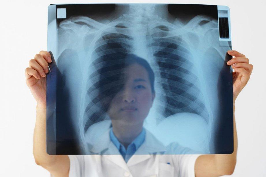 Les femmes de plus en plus affectées par le cancer du poumon