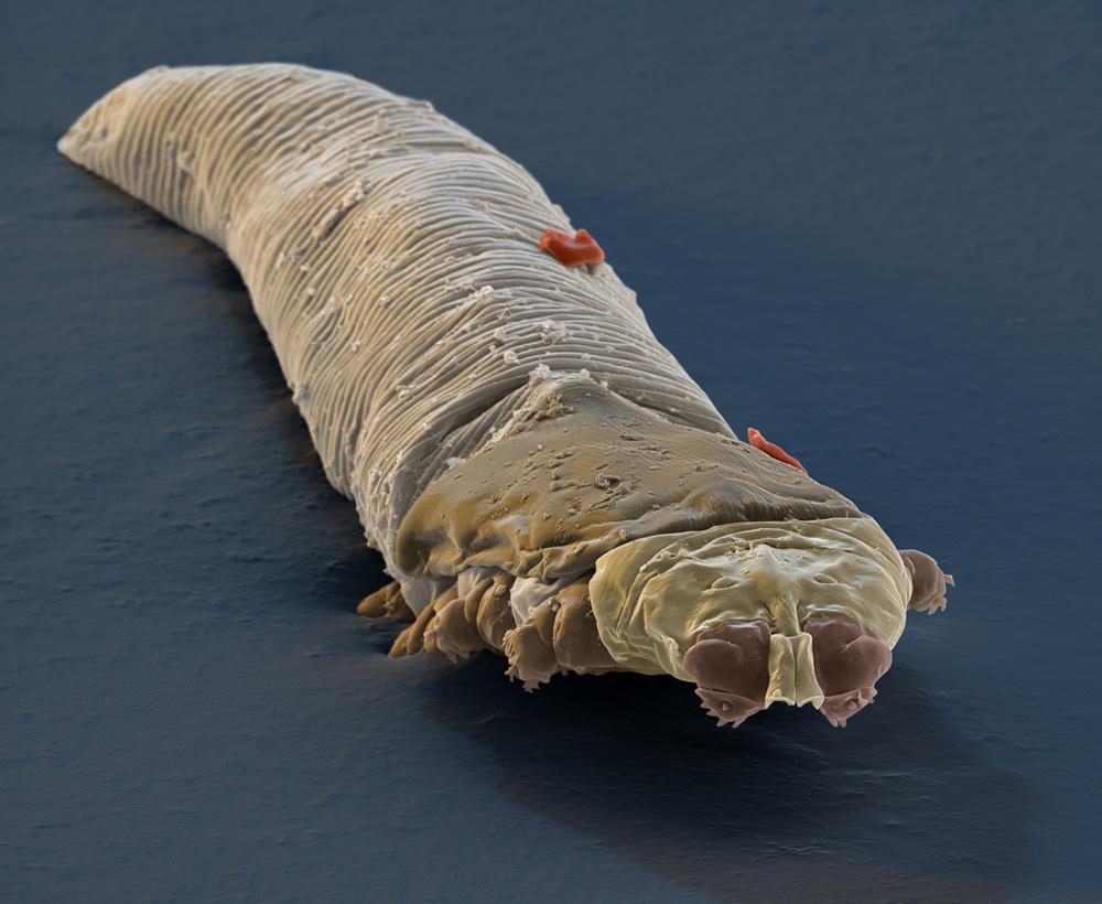 On a tous des insectes qui vivent sur nos visages !