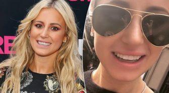 """Une femme a utilisé de la colle à cils pour """"réparer"""" ses dents cassées"""